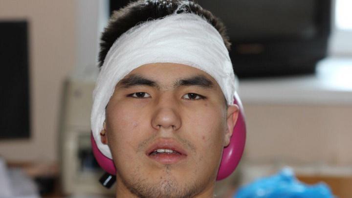 Житель Эвенкии с раздробленной челюстью три месяца думал, что «заживёт само», но его спасли врачи