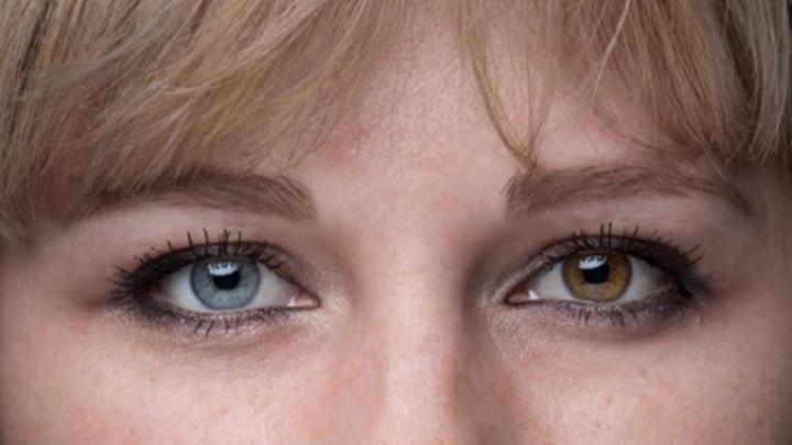 Люди-хаски: истории четырёх челябинцев, живущих с глазами разного цвета