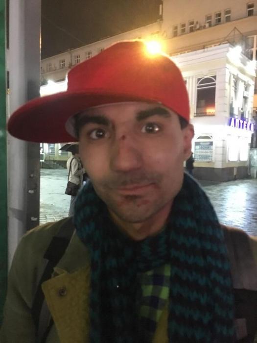 Иван - один из тех, кто заступился за парня. Так он выглядел сразу после избиения. Его другу сильнее досталось от нападавших — он сейчас лежит в больнице
