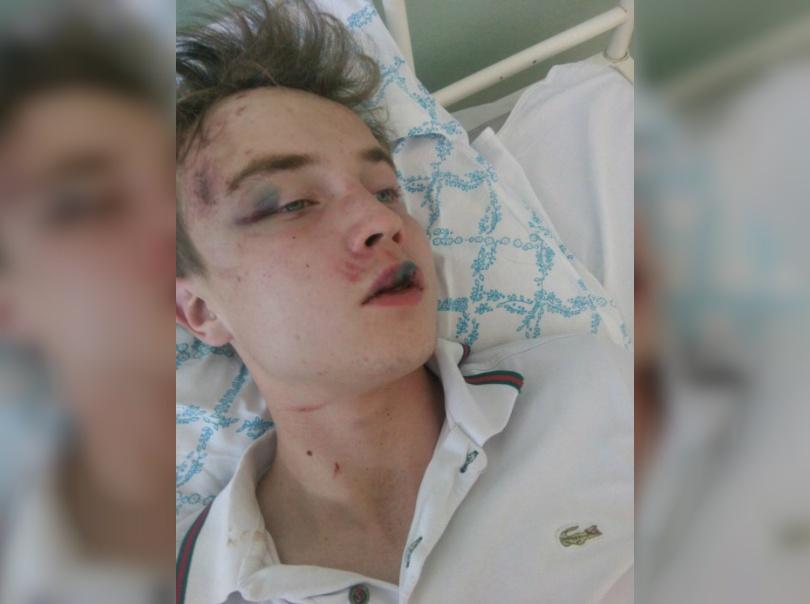 С травмами Кирилла доставили в больницу