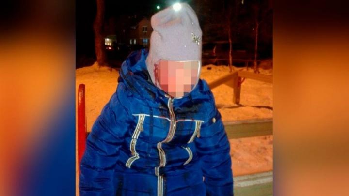 В Среднеуральске коммунальщики ответят за бродячую собаку, искусавшую маленькую девочку