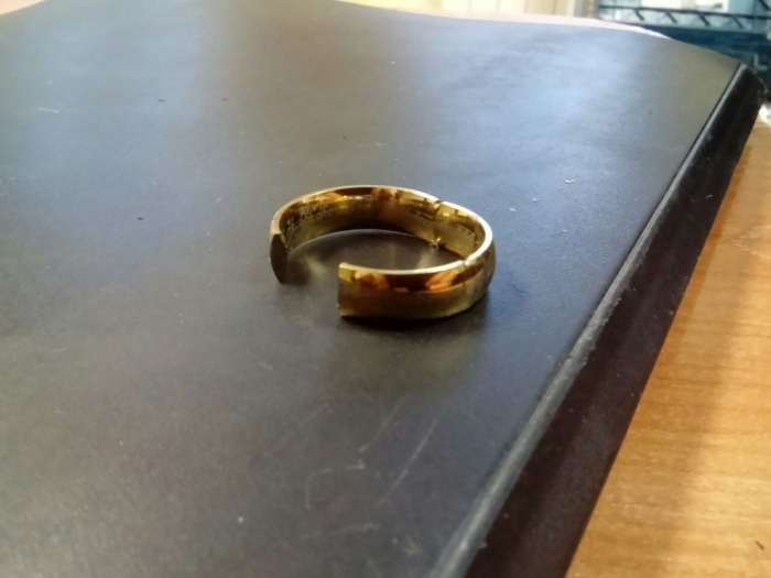Кольцо, которое в декабря 2016 года снимали с опухшего пальца подростка спасатели МАСС