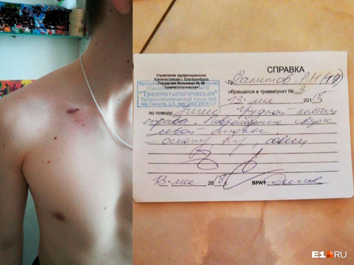 Врачи констатировали у Романа ушиб грудной клетки и повреждение связок левой стопы