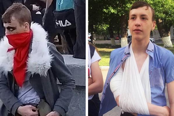 На первом фото — костюм Юры для фестиваля, на втором — школьник после больницы