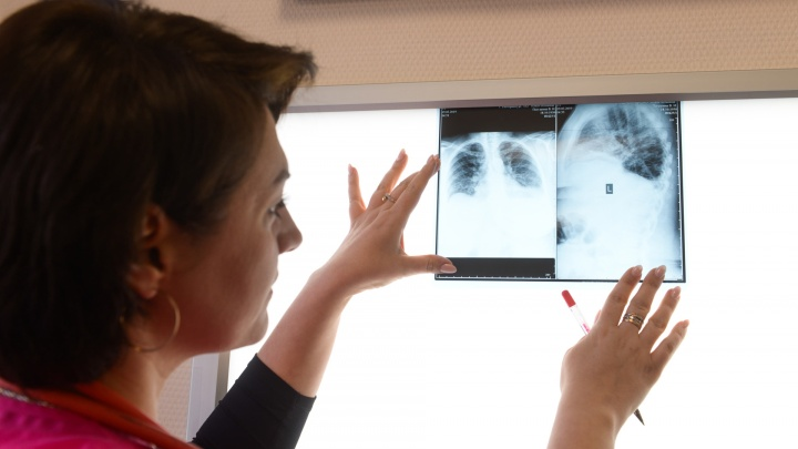 ОРВИ засыпает, просыпается пневмония: как понять, что после болезни началось осложнение