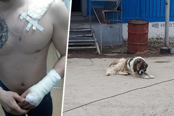 Из-за нападения алабая молодой человек попал в больницу