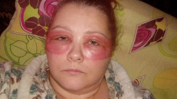 Воспитательница из детского сада: «В салоне красоты мне сожгли лицо»