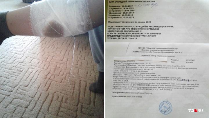 В районе старой Лесобазы бродячие собаки напали на восьмилетнего велосипедиста