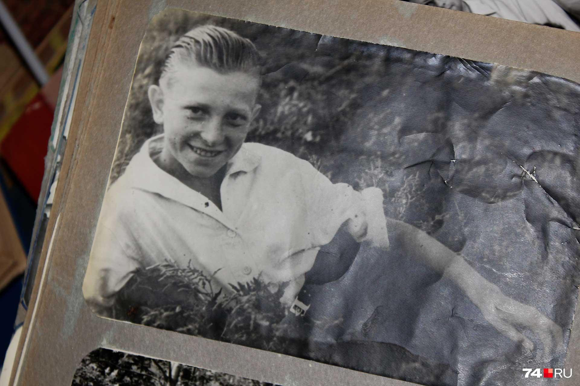 Игорь Вишев в 14 лет получил химический ожог и перенес больше 30 операций, зрение было потеряно навсегда