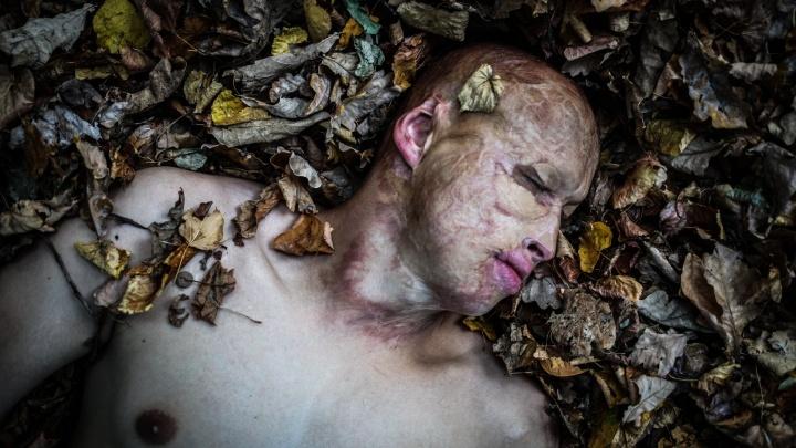 Уралец победил на престижном фестивале с фотографией парня, которого в детстве отец бросил в печь