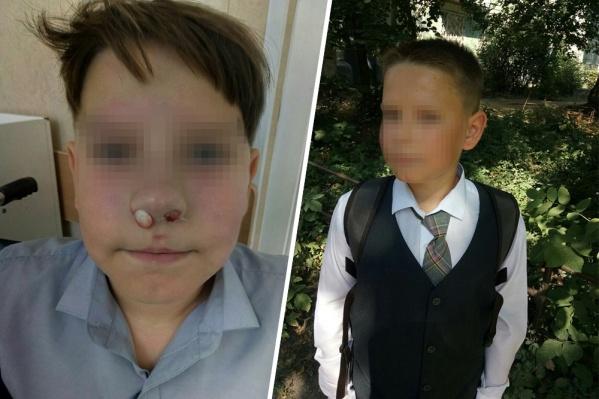 По словам мамы, у мальчика обнаружили перелом носа и сотрясение мозга