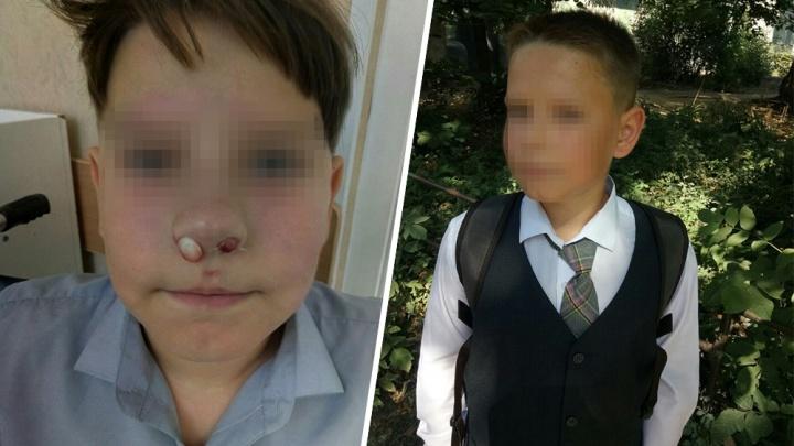 «Сын потерял сознание»: мама самарского пятиклассника о драке с участием своего ребенка