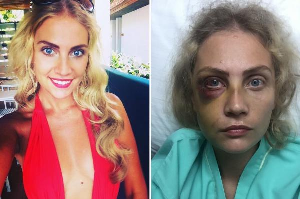 После происшествия, которое описывает Екатерина, ее внешность сильно изменилась