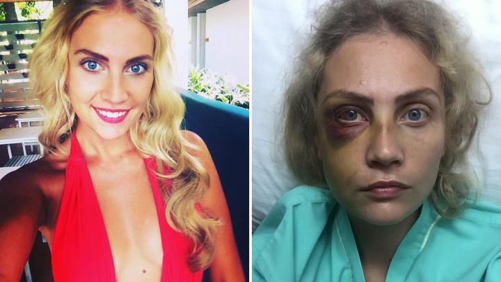 «Избил на глазах у ребенка»: модель из Тольятти заявила о семейном конфликте публично