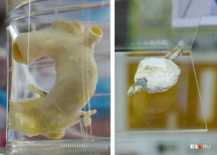 В медицинском музее сразу привлекают внимание баночки с загадочным содержимым