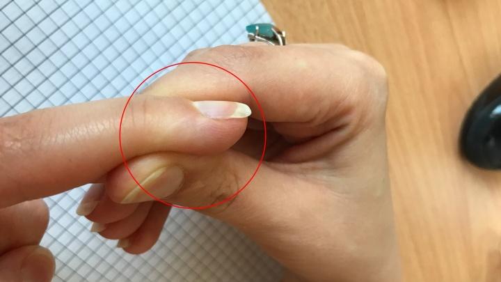 «Почти у всех на этом пальце есть шрам»: тюменцы поддержали странный флешмоб своими историями