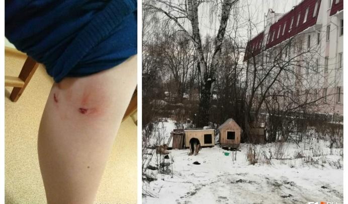 Прокуратура выяснит, кто виноват в нападении собак на 11-летнего мальчика в Березовском