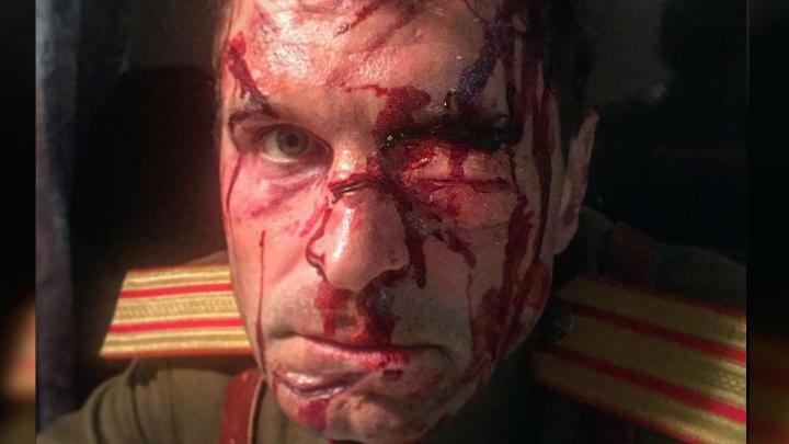 «Люблю свою работу»: Виктор Добронравов опубликовал фото с разбитым лицом