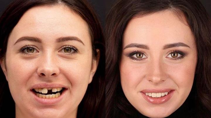 Им всё по зубам: смотрим, как преобразились улыбки тюменцев после похода к стоматологу