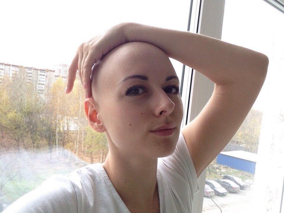 Так девушка выглядела после курсов химиотерапии