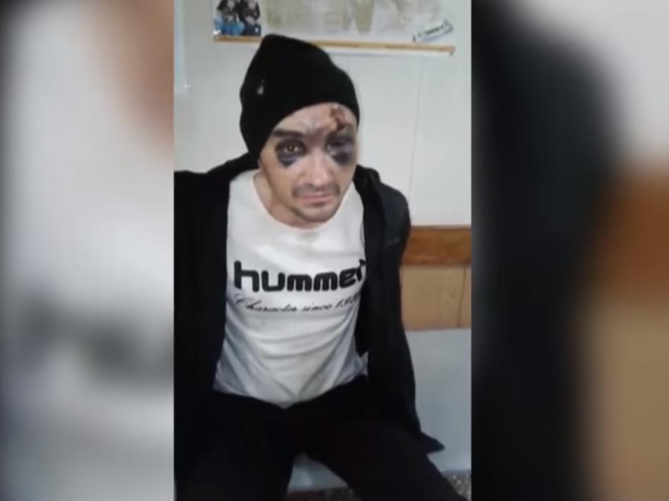 На видео полицейские шутили над Головко, закованным в наручники, спрашивая, почему он такой «красивый»