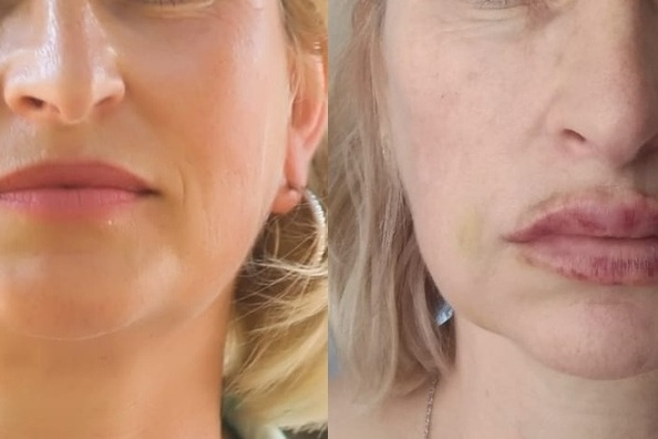 Слева фотография женщины до косметологических процедур, справа — спустя три дня