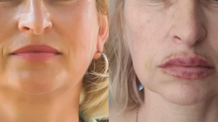 «Месяц не могла открыть глаза»: сибирячка чуть не осталась без лица после похода к косметологу