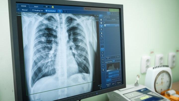 «Просветили» иностранца: челябинские врачи рассказали, как нашли туберкулёз у студента-индонезийца