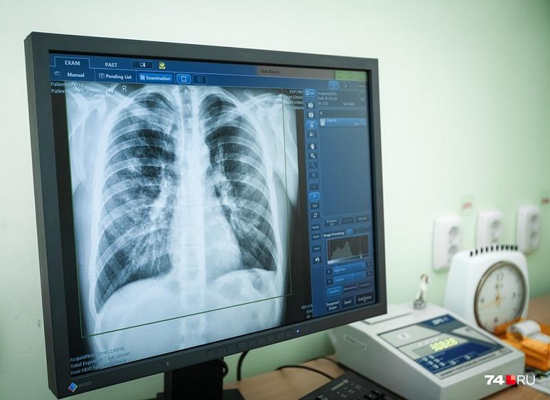 Смертность от туберкулёза в регионе за год снизилась на 17 процентов