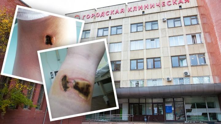«Готовят к пересадке кожи»: 16-летняя челябинка получила ожоги ног, попав в больницу с аппендицитом