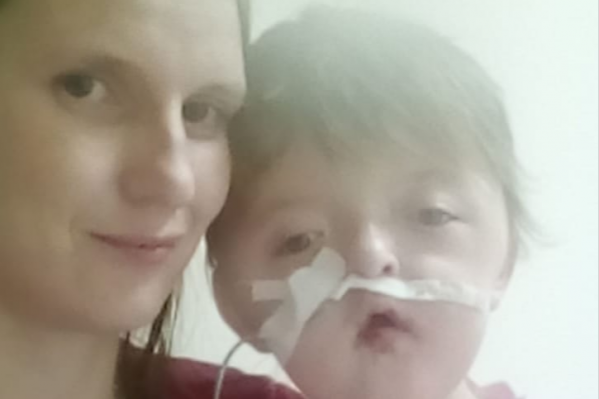 После операции ребенок несколько дней ходил с дренажной трубкой