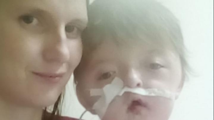 Девочке Соне со сросшимися пальцами и неправильной формой головы сделали операцию в Уфе