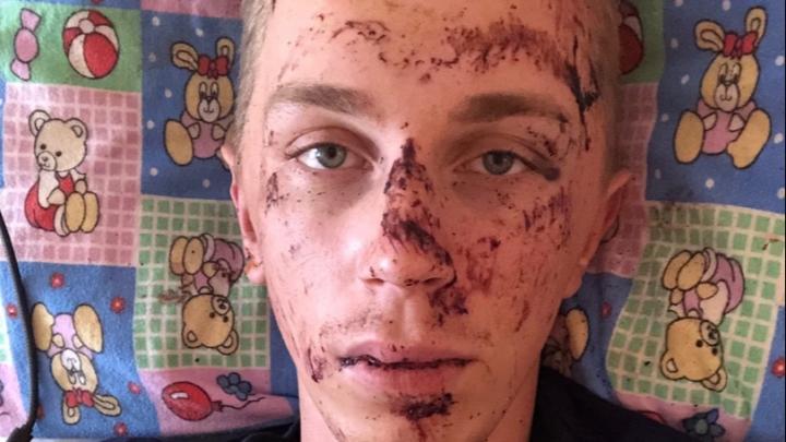 Россияне за сутки собрали деньги на операцию сбитому в Сочи нижегородскому полицейскому