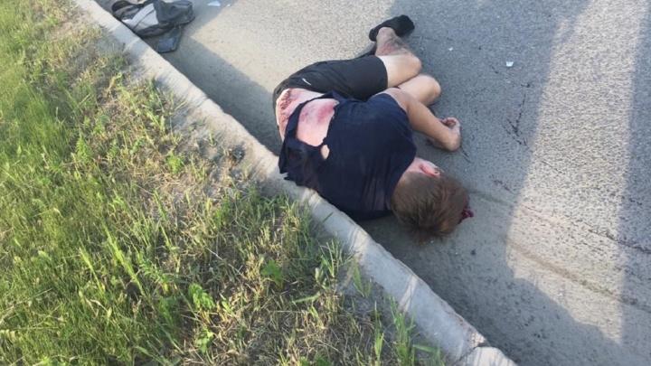 У мужчины сломаны обе ноги: в переулке Базовом женщина на Lada сбила велосипедиста