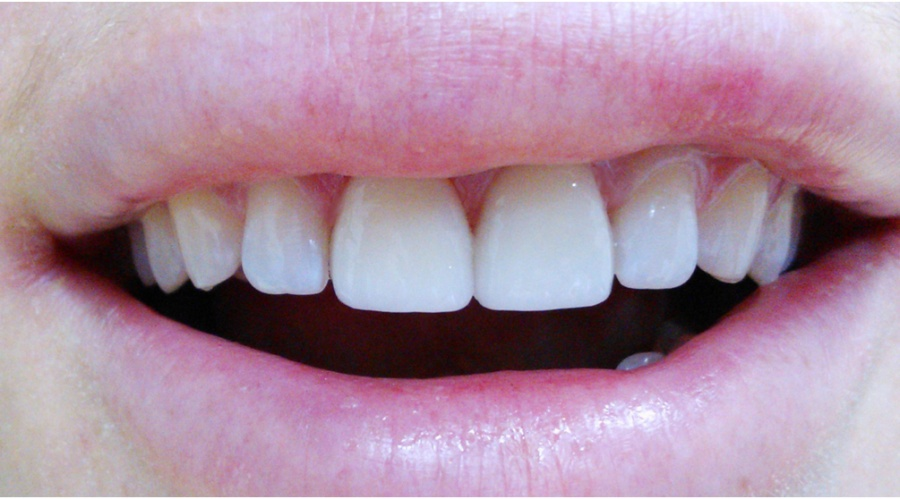 стоматологические виниры заказать
