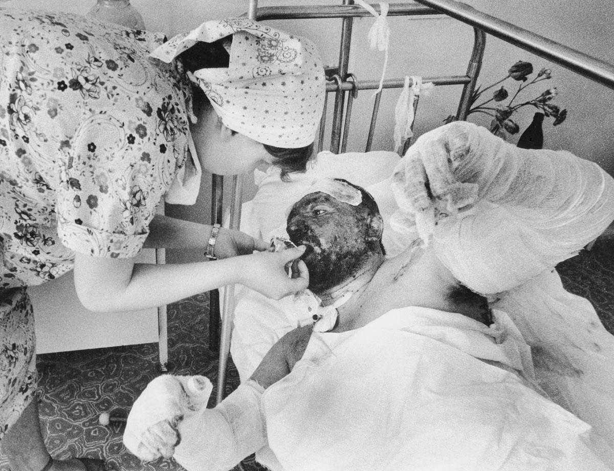 Ожоговые травмы крайне болезненны, требуют длительного лечения, а зачастую — сложных пластических операций