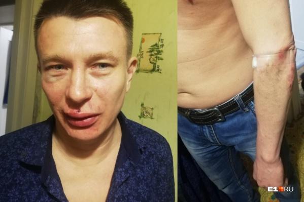 В драке Алексеюразбили лицо и повредили руку