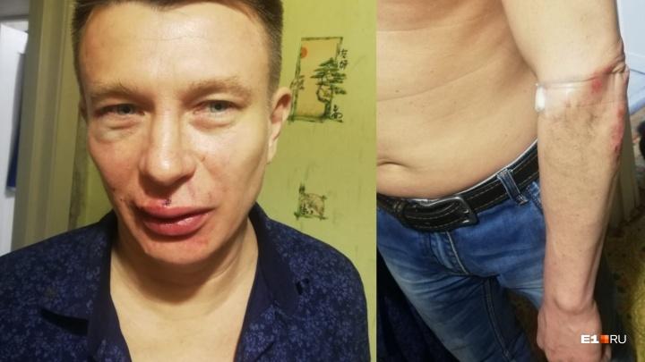 «Меня волоком тащили по лестнице»: екатеринбуржцу разбили лицо в клубном ресторане в центре города
