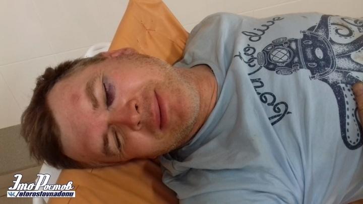 Разрыв связок и амнезия: ростовский велосипедист получил травмы из-за ямы на дороге