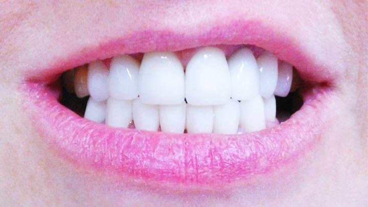 Немецкое качество протезирования зубов по новосибирским ценам