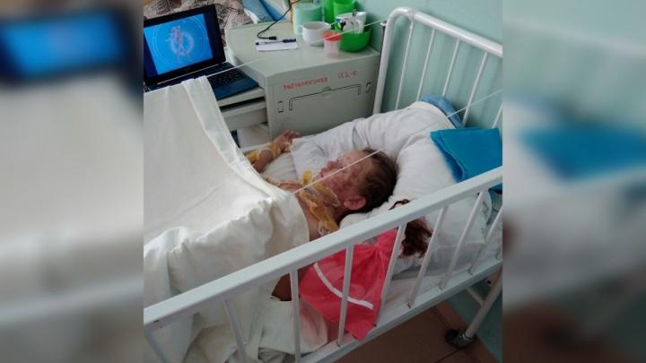 Кожа прижилась: девочка, обгоревшая на южноуральском озере, продолжит лечение дома