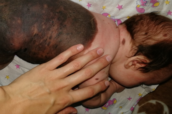 90% тела девочки покрывают родимые пятна