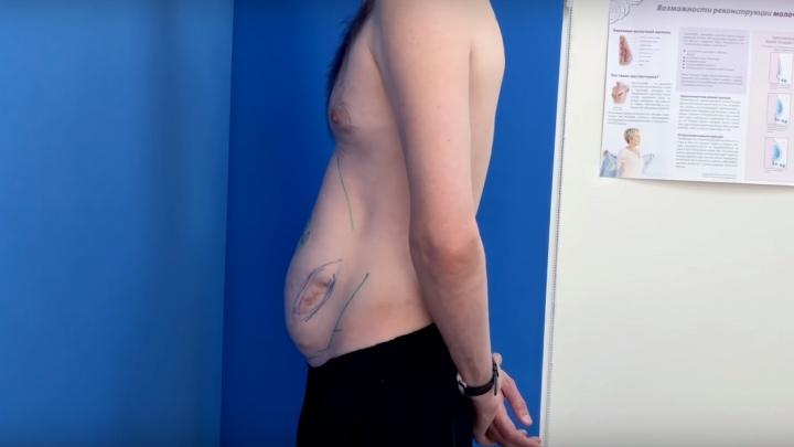Пластический хирург исправил красноярцу деформацию живота после ДТП