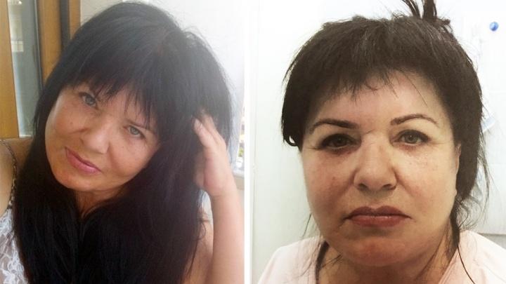 «Я хотела быть идеальной»: сибирячка отсудила у клиники миллион за изуродованные лицо и тело