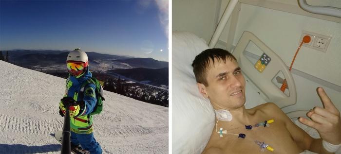 До диагноза «саркома» новосибирец Кирилл Царегородцев активно катался на сноуборде и велосипеде