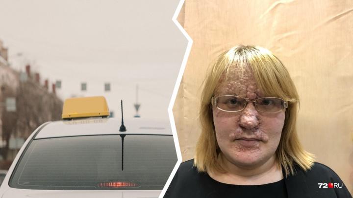 Таксист отказался везти тюменку, чьё лицо поражено опухолями