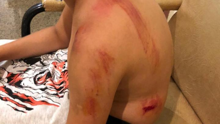 «У него перелом ключицы со смещением»: в Харитоновском парке на 10-летнего мальчика упало дерево