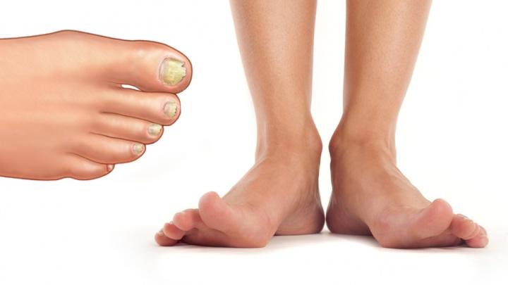 Грибной сезон: в клинике дарят скидку 50 % на первую процедуру лазерного лечения грибка ногтей
