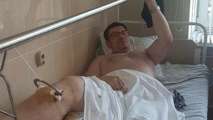 «Больбыла дикая»: в Екатеринбурге велосипедист сломал ногу, когда его попытался остановить гаишник