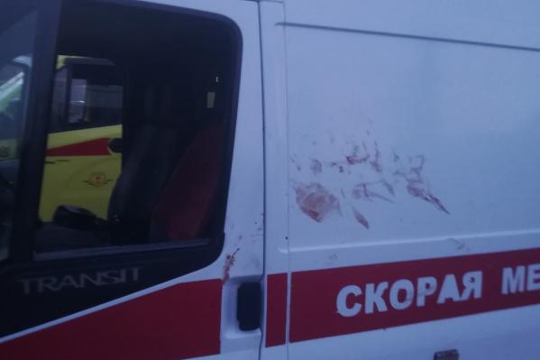 Пациент повредил медицинский автомобиль и сильно перепугал фельдшера